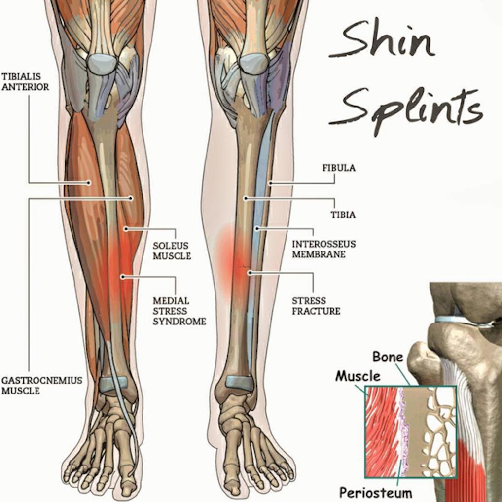 Shin Splints – American Foot & Ankle
